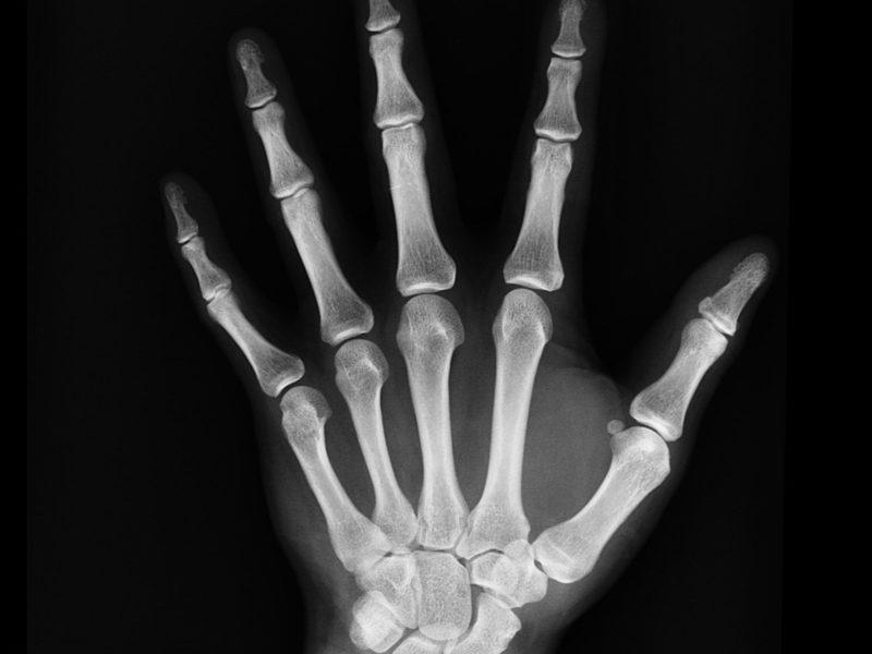 picco di massa ossea